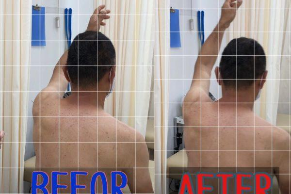五十肩への鍼治療前後